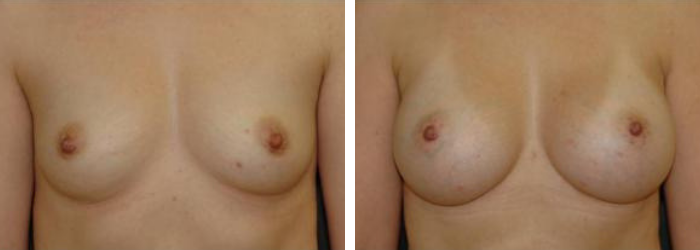 Breast Augmentation Before & After Winter Park, FL