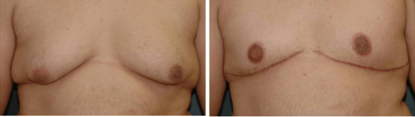 Male Breast Reduction Winter Park