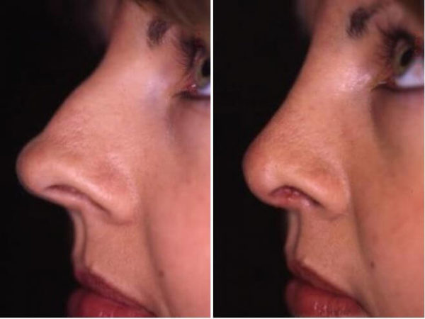 Nose Surgery Winter Park