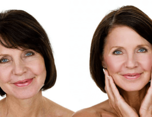 How Much Does a Facelift Cost?