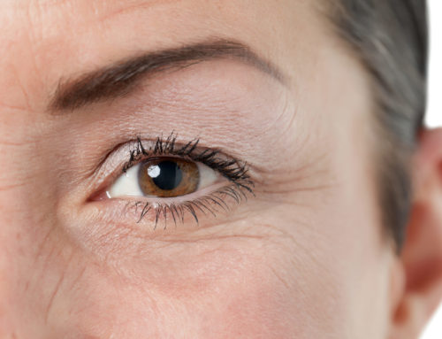 How Much Does a Blepharoplasty Cost?